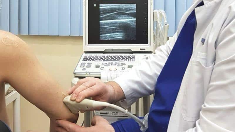 Как лечить синовит локтевого сустава