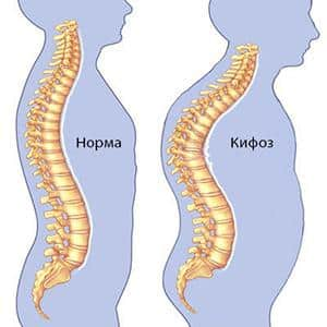 Что такое кифоз и как лечить кифоз грудного отдела позвоночника