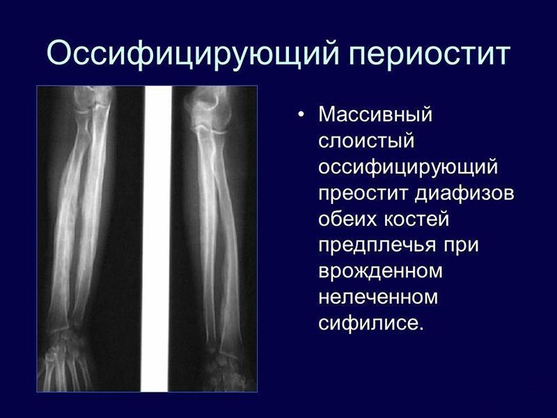 Как лечить периостит большеберцовой кости