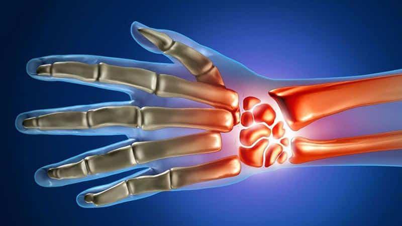 Как лечить воспаление и боль в лучезапястном суставе