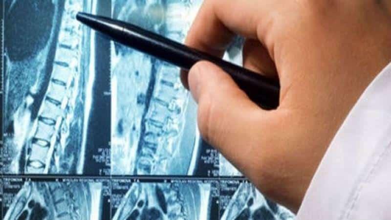 Как избавиться от головокружения и головных болей при шейном остеохондрозе