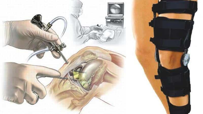 Как лечить нестабильность коленного сустава