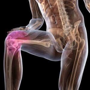 Остеопороз коленного сустава - симптомы и лечение