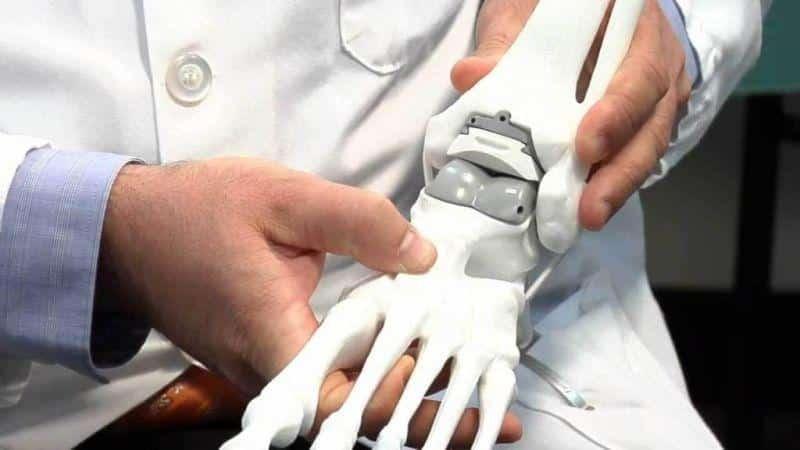 Как лечить крузартроз голеностопного сустава