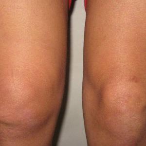 Как лечить хондроматоз суставов