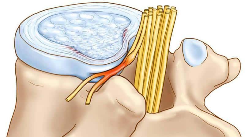 Что такое межпозвоночная грыжа и как её лечить