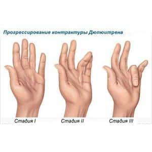 Что такое контрактура сустава и как её лечить