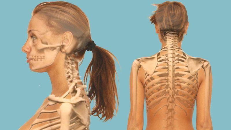 Что делать, если болит шейный отдел позвоночника
