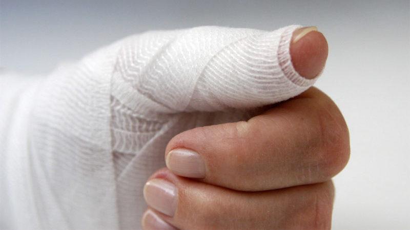 Что делать при вывихе пальца