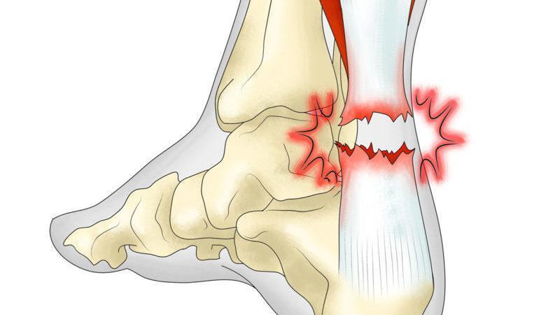 Что такое ахиллово сухожилие и где оно находится