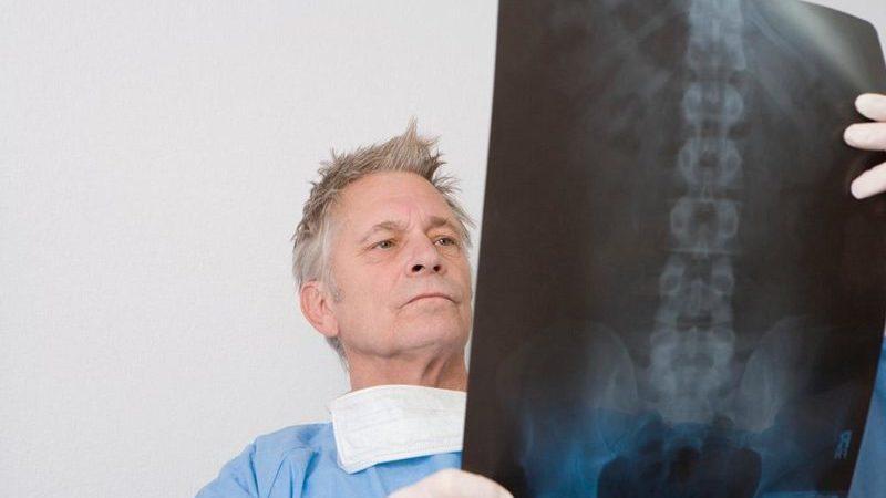 Что такое компрессия спинного мозга