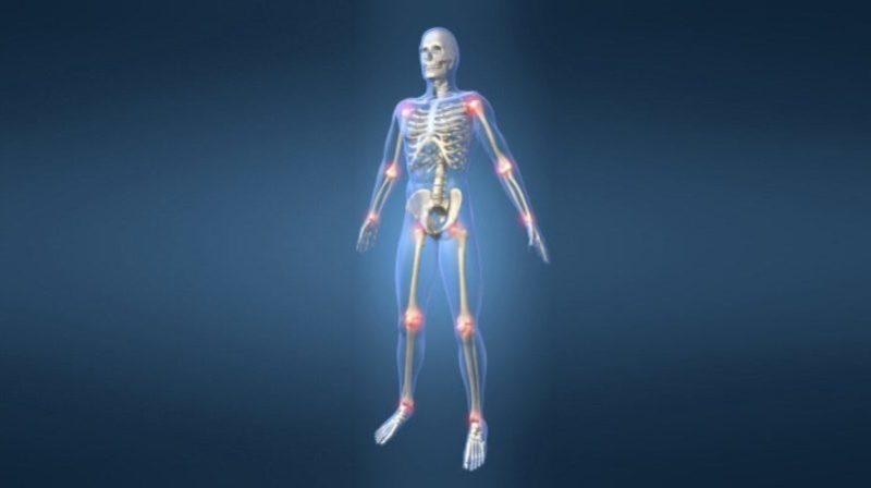 Что такое миопатия мышц и как её лечить
