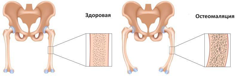 Что такое остеомаляция и как её лечить