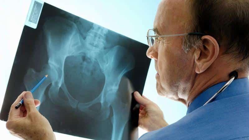 Что такое остеосклероз и как его лечить