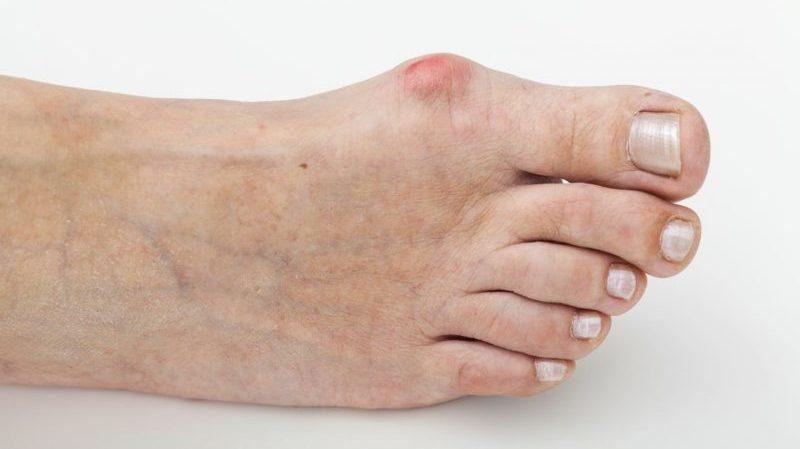 артрит и артроз коленного сустава в чем разница