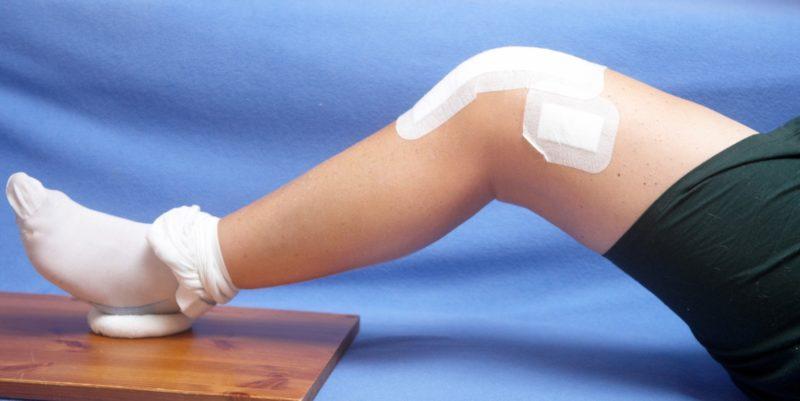 Как лечить артрит в домашних условиях