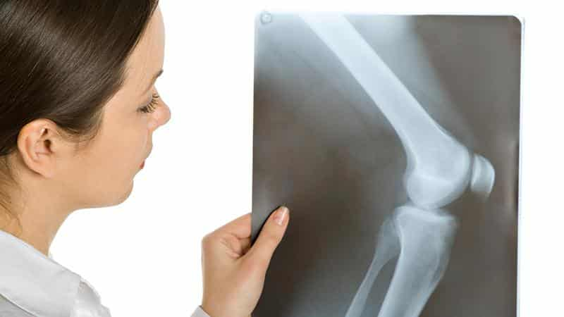 Как лечить болезнь Кенига коленного сустава