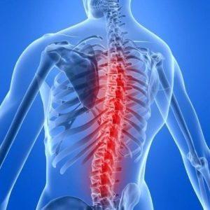 Как лечить остеохондропатию позвоночника