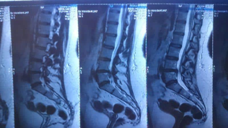 Как лечить пролапс межпозвоночного диска