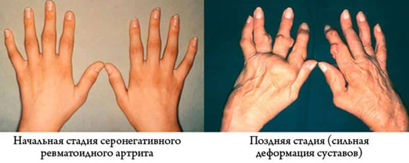 Как лечить серонегативный ревматоидный артрит