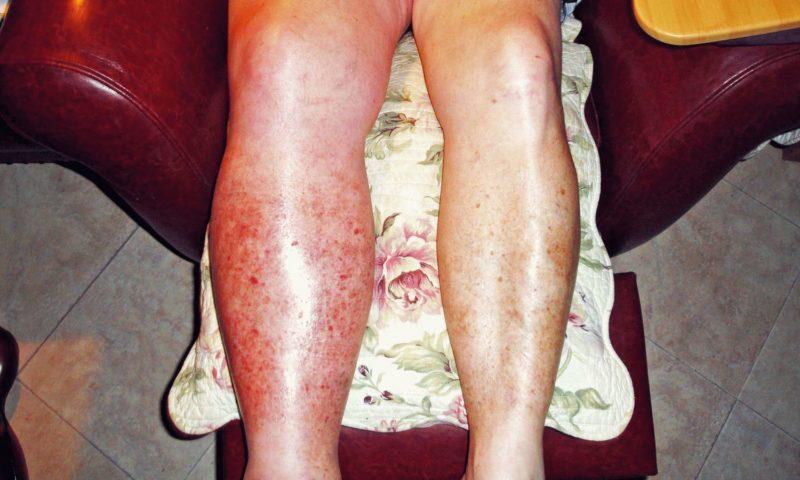 Как лечить воспаление надкостницы голени