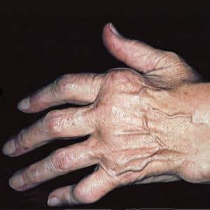 Как лечить артрит на пальцах рук