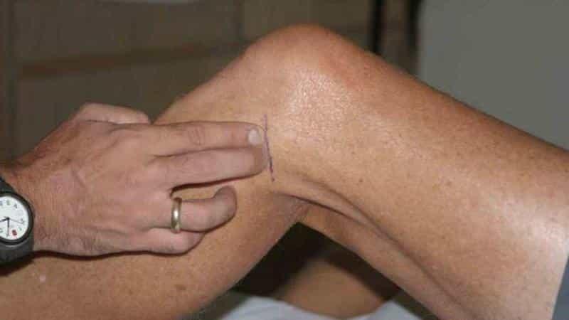 Как лечить боль в колене сбоку с внешней стороны