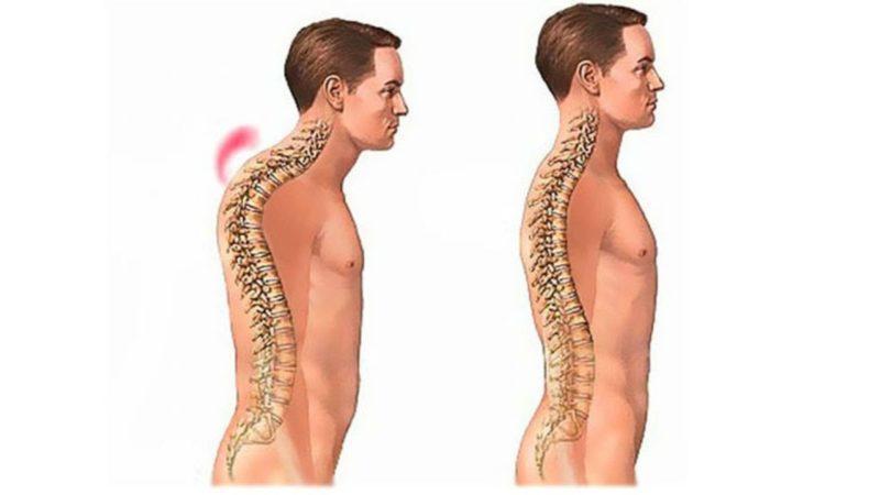 Как лечить синдром Шейермана Мау
