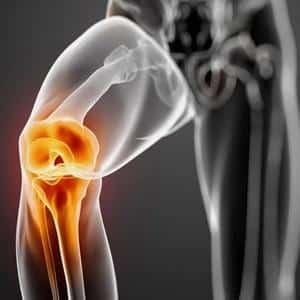 Как лечить синдром колена бегуна