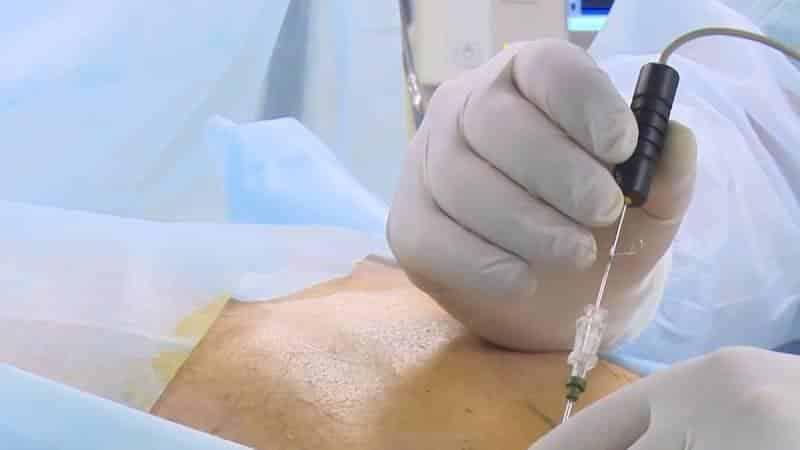 Как проводится холодноплазменная нуклеопластика