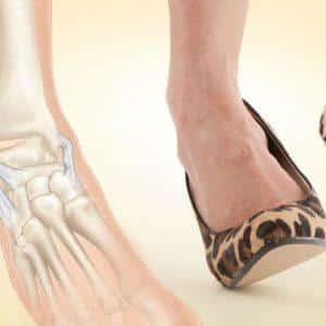 Что делать, если подвернул ногу