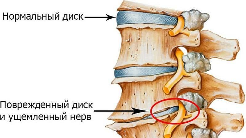 Как лечат остеохондроз поясничного отдела