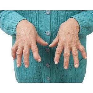 Что такое ревматоидный полиартрит и как его лечить