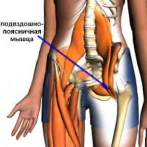 Что делать, если болит подвздошно-поясничная мышца