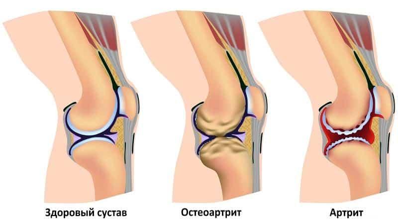 Какие уколы назначают при артрите