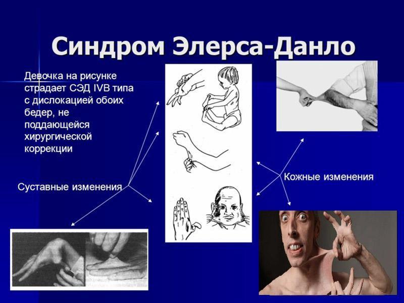 Как лечить синдром Элерса-Данлоса