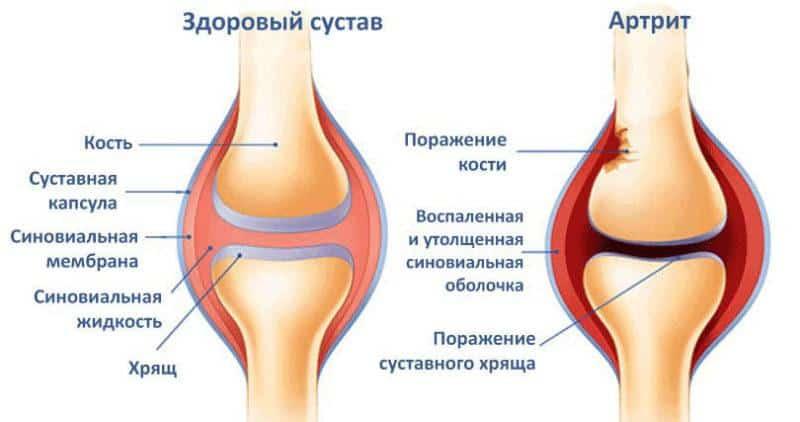 Что делать, когда болят колени при ходьбе и беге