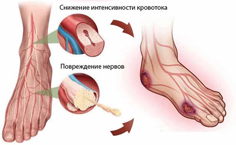 Как лечить диабетическую стопу