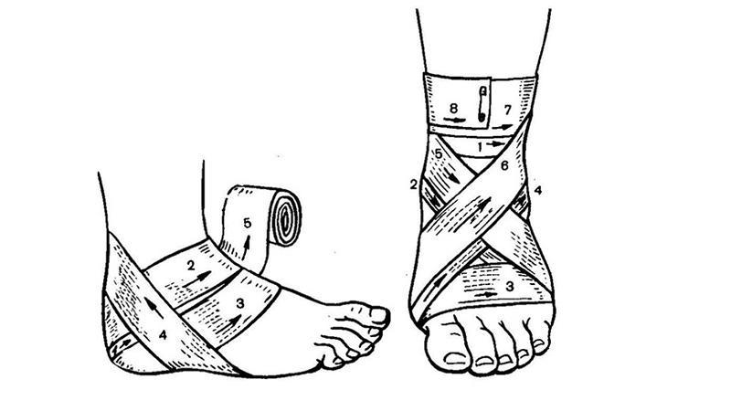 Что делать, если болит голеностопный сустав