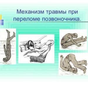 Как лечить повреждение спинного мозга