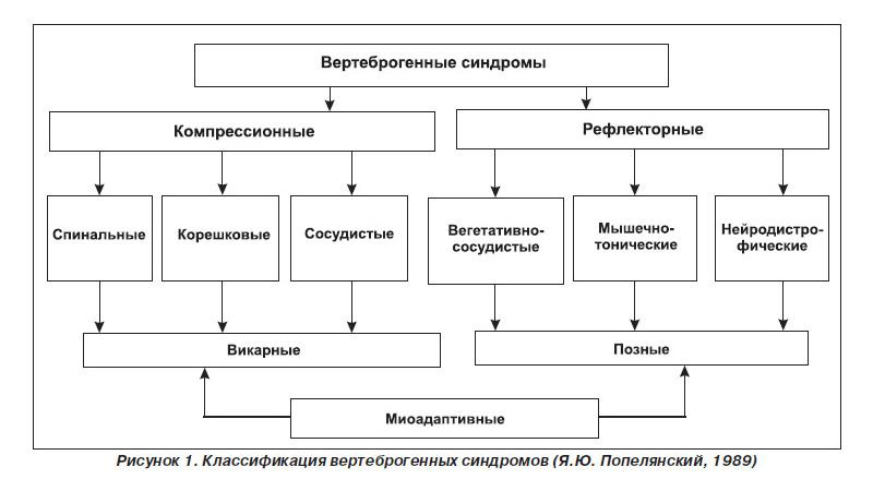 Как лечить вертеброгенный болевой синдром