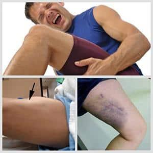 Что делать при растяжении мышц на ноге