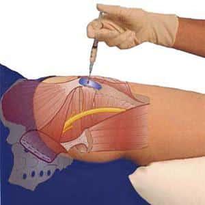 Как лечить коксартроз тазобедренных суставов