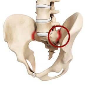 О чем говорит боль в крестцово-подвздошном суставе