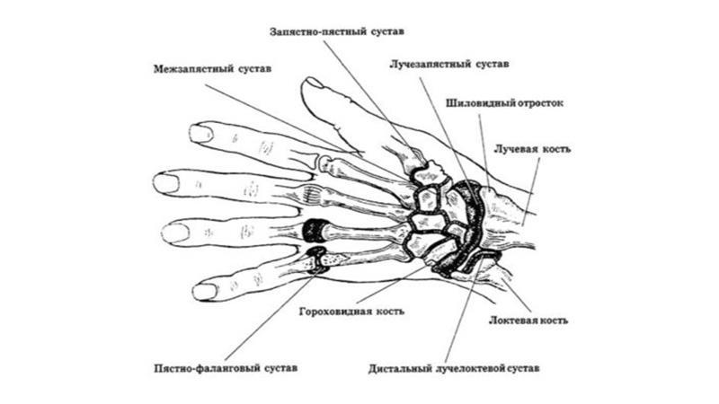 Как лечить ушиб лучезапястного сустава