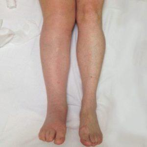 Что делать, если опухают суставы на ногах