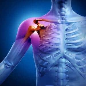 Как проходит эндопротезирование плечевого сустава