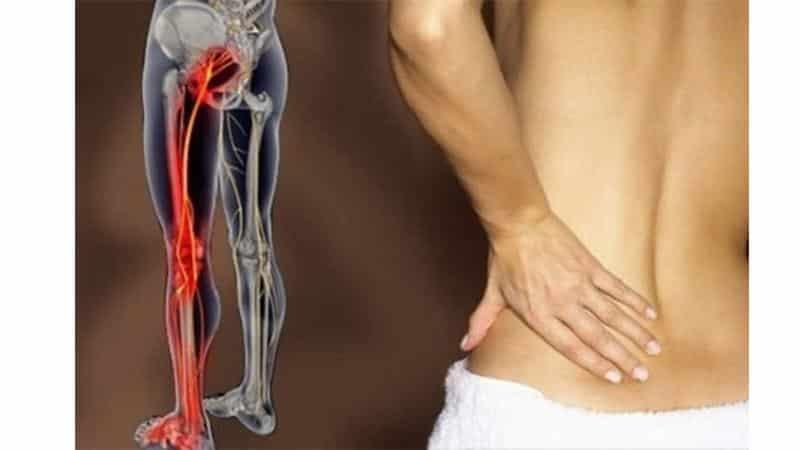 Как лечить защемление нерва в тазобедренном суставе