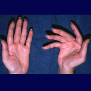 Как лечить артрит кисти руки