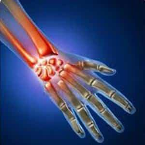 Как лечить артрит лучезапястного сустава